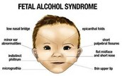 Fetal alcohol syndrome (FAC)