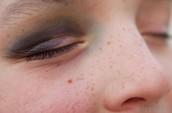 Bruises 2