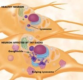 Neuron affected by Tay-Sachs