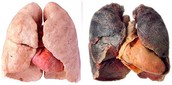How do people get lung cancer?