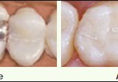 Tooth-colored Resins (Bonding)