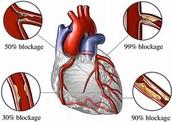 Cholesterol blockage-percents