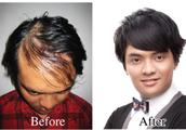 Oily-Scalp Hair Loss