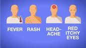 Symptoms of the Zika Virus