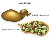 Gall Stones