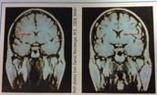 Examining The Brain