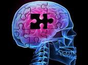What is Alzheimer's?