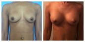 Procedure: Breast Augmentation