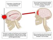 How Concussions Occur