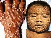 What are the symptoms of Smallpox?