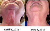 Skin Improvement Without Surgery!