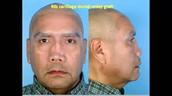 Nose deformiy