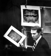 Photos of Bundy's Teeth