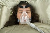 What happens if you have Sleep Apnea?