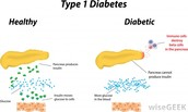 Healthy vs Diabetic