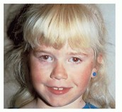 Types of Albinism and Why it Occurs