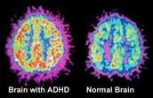 Brain without and Brain with ADHD Comparison