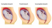 The complication of a Breech Baby
