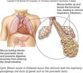 Mucus Buildup