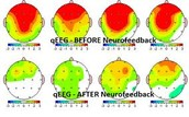 One Day Basics of NEUROFEEDBACK Hands On with QEEG analysis workshop in Mumbai, India