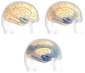 Progression of Alzheimer's