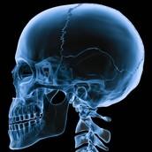 Es raro que venga por un radiographia.