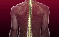 Spinal Cord Damage