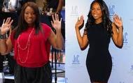 Jeniffer Hudson- Weight Loss Patient
