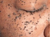 Dermatosis on the check and by the eye