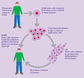 Stem-cell transplant