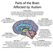 How Autism impacts the Brain