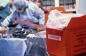 Organ & Kidney Transplant