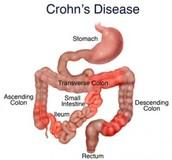 Area of impact of Crohn's Disease