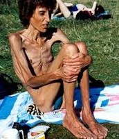 man with anorexia