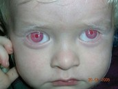 albinism in the eyes