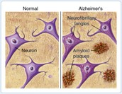 Amyloid Plaques and Neurofibrillary Tangles