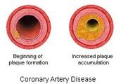 Summary Of Coronary Artery Disease