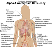 But what is so bad about this deficiency of Alpha-1?