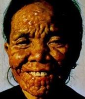 Leprosy on face