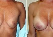 Breast Augmentation Surgery In Las Vegas NV