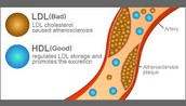 LDL and HDL model