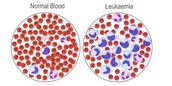 Normal Blood vs Josh's Blood