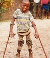 Los niños discapacitados