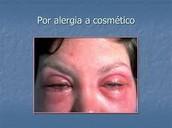 Cosméticos causan alergias en la piel