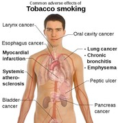 More effects of Tobacco smoking.
