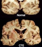 How the brain looks like with CTE, and how the brain look without CTE.