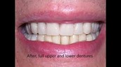 Comfort Dental Center : cosmetic dentist ann arbor