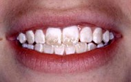 Tooth Enamel Loss!