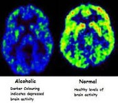 An Alcoholics' Brain