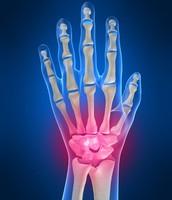 Wrist damages